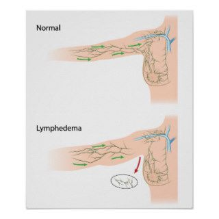 lymphedema arm disease diagram poster