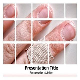 Wound Healing Powerpoint Template   Wound Healing Powerpoint (PPT) Template Software