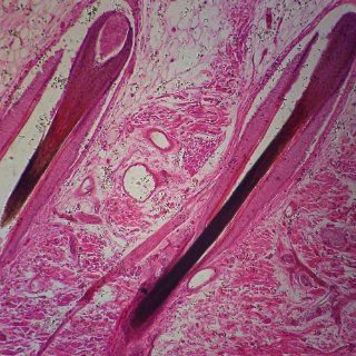 Mammal Hairy Skin sec. 7 m H&E stain, Microscope Slide: Industrial & Scientific